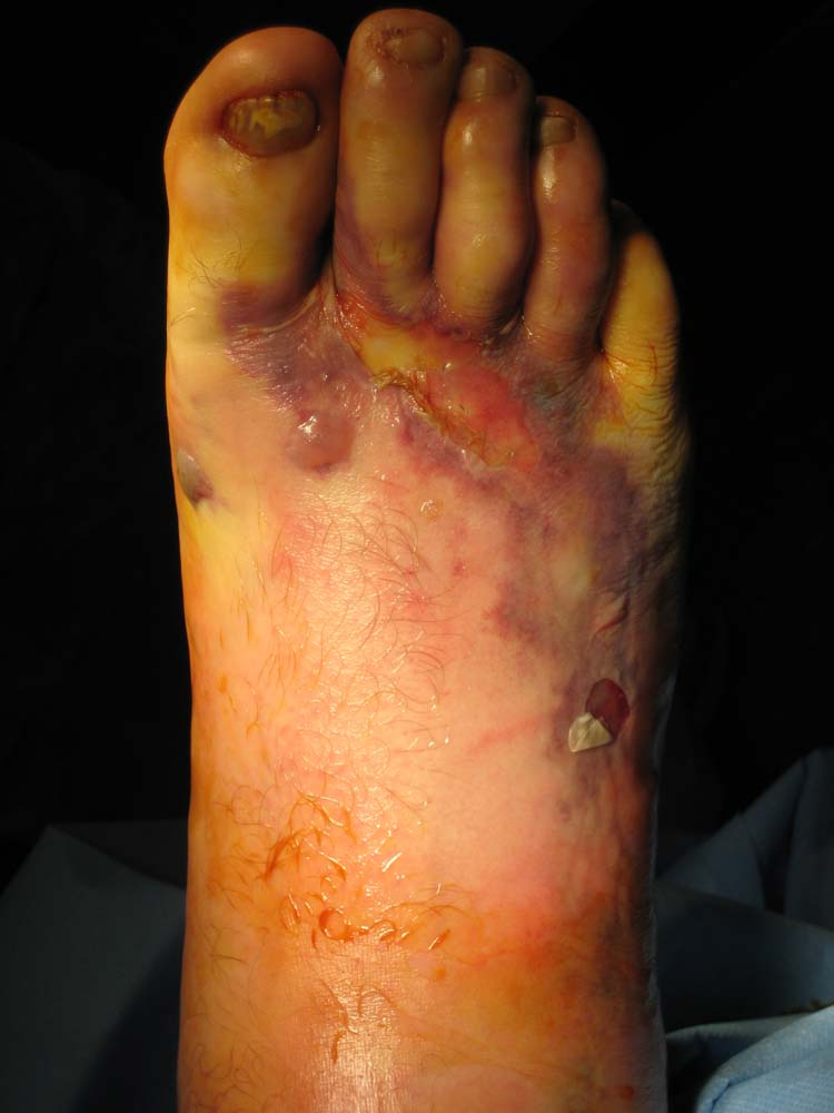 Medical Pictures Info – Ecchymosis