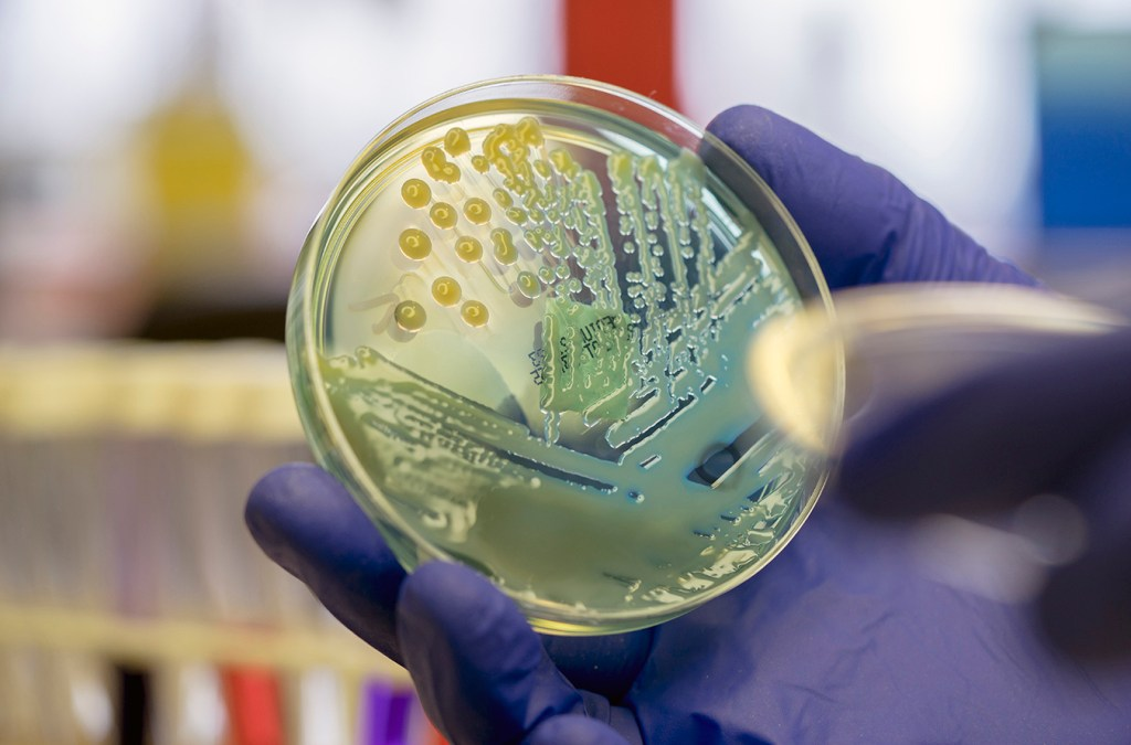 """CDC Confirms The """"Nightmare Bacteria"""" across the US"""