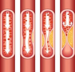 Medical Terminology Quiz Myocardial Infarction