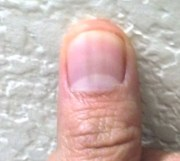 dark vertical lines nails