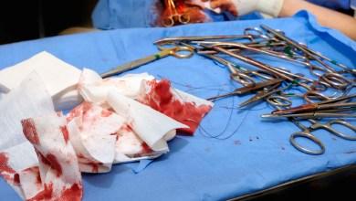 Photo of العمليات المستعملة في معالجة نفايات الرعاية الصحية