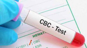 آزمایش CBC چیست؟   کاربرد انجام آزمایش CBC   نتایج آزمایش CBC