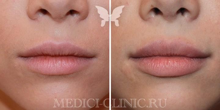 Инъекции препаратом Juvederm Ultra Smile. Фото сразу после процедуры.