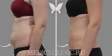 Фото до и после 2-ух процедур криолиполиза