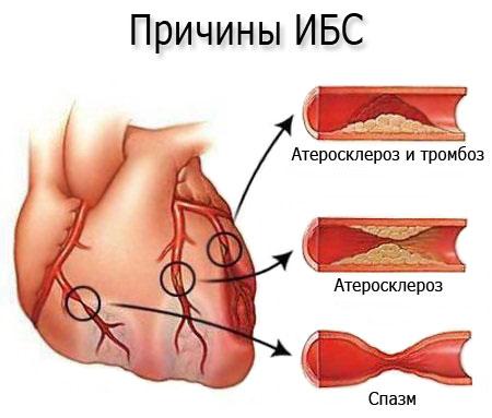 hipodinamia hipertóniával