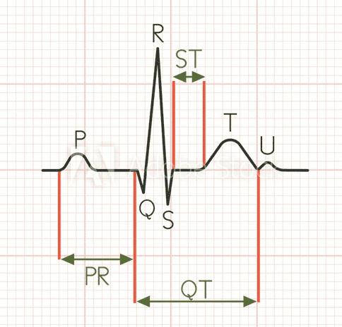 Eletrocardiograma - intervalo QT.PNG