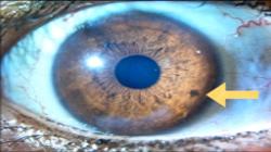 iridología-250x140