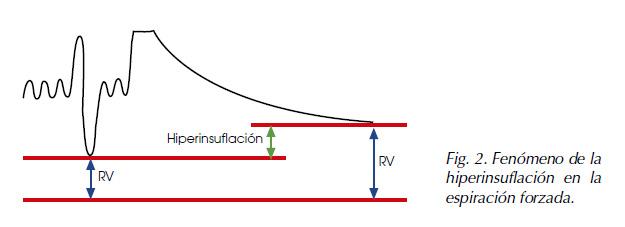 hiperinsuflacion-espiracion-forzada