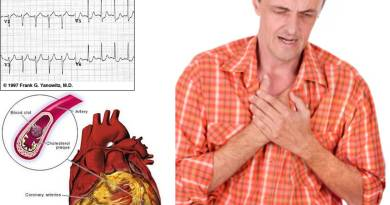 la hipercolesterolemia condiciona patologías cadíacas e ictus