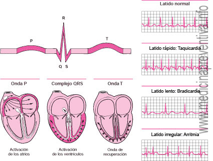 el-electrocardiograma