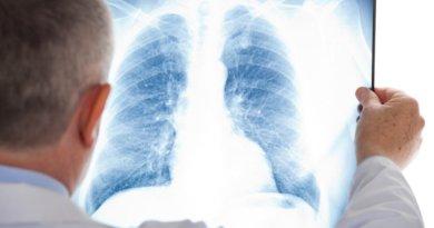Más de la mitad de las personas que sufren de enfermedades respiratorias crónicas no tienen diagnóstico.