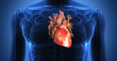 Uno de cada cinco pacientes que sufre de insuficiencia cardíaca reingresa a el hospital en los 30 días siguientes a ser dado de alta.