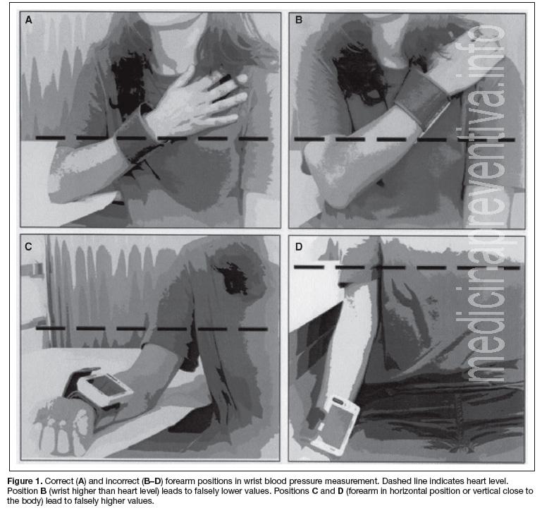 posiciones-tensiometro-muneca
