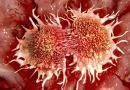 66% de los cánceres dependen de mutaciones del ADN y 29% de factores ambientales   Por: @linternista