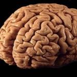Osmolality and Brain Injury