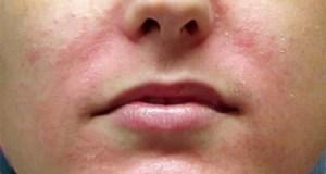 Раздражение кожи на лице. Методы лечения