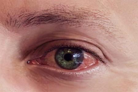 Конъюнктивит глаз у взрослых -  описание и методы лечения