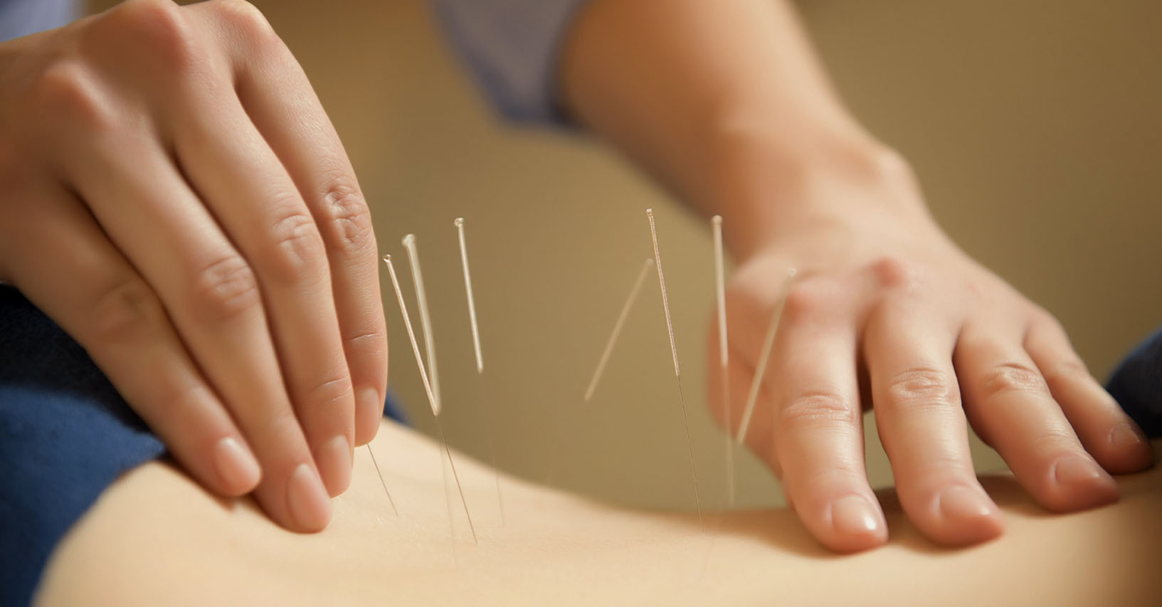 acupuncture clinic department of