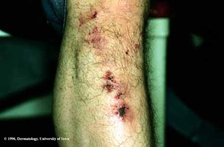 Dermatitis Herpetiformis  Department of Dermatology
