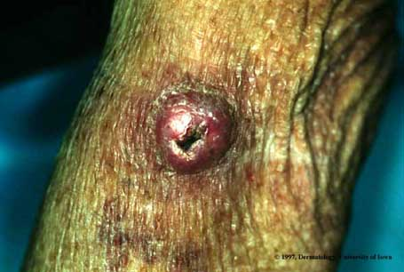 Keratoacanthoma  Department of Dermatology