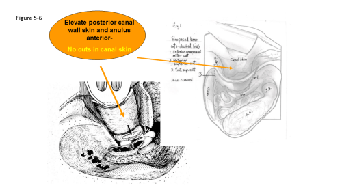 small resolution of canal wall reconstruction mastoidectomy