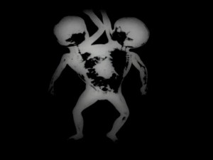 An X-ray of very young twins joined along the torso.