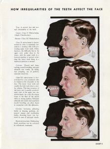 A dental wall chart, titled 'How irregularities affect the face,' compares a face with a normal bite, over-bite, and under-bite.