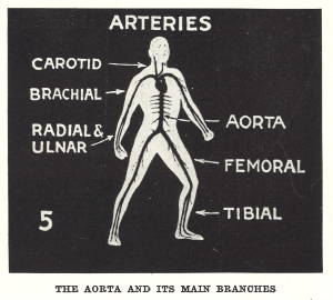 A human figure in fighting stance with artery overlay and major elements labeled.