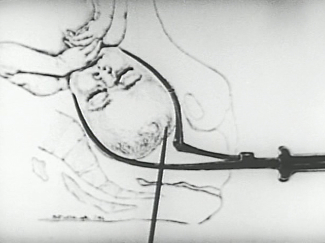 Anatomical illustration showing forceps around the head of a fetus.