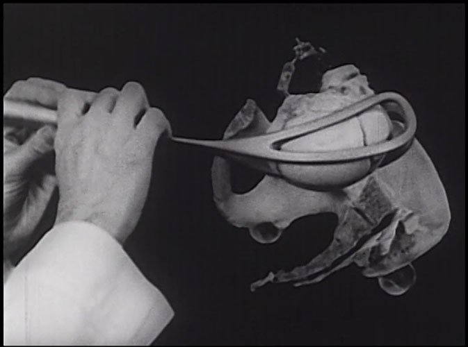 Film still of the use of forcepts on skeletons.