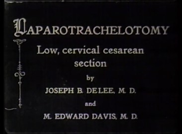 Film still of intertitle reading Laparotrachelotomy Low, cervical cesarean section by Joseph B. DeLee, M.D. and M. Edward Davis, M.D.
