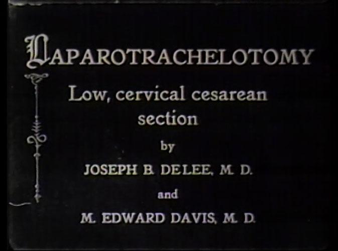 Film still of intertitle reading Laparotrachelotomy Low, cervical cesarean section by Joseph B. DeLee, M.D. and M. Edward Davis, M.D.