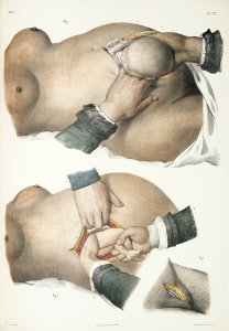 Two illustrations on a page showing three different caesarean methods. Some French text visible at bottom: Traité, vol. 7, pl. 77.