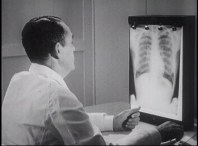 A man looks at a chest X-Ray.