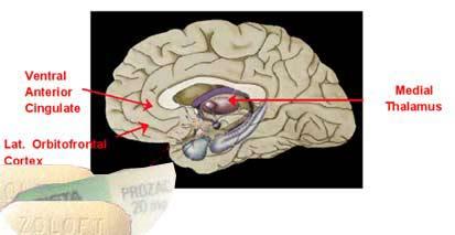 https://i0.wp.com/medicineworld.org/images/news-blogs/brain-antidepressants-55490.jpg