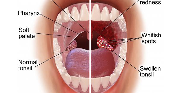 Acute Tonsilitis
