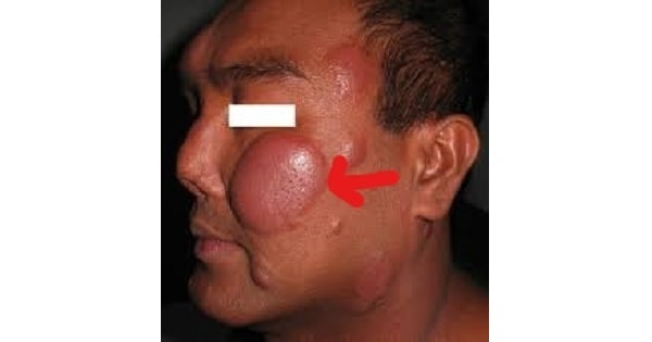 Lepra Reaction And Erythma Nodosum Leprosum