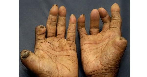 Leprosy- Epidemolgy,Vaccination,NTLEP