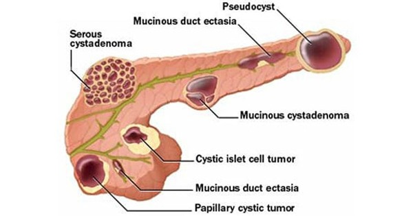 Pancreatic Pseudocyst
