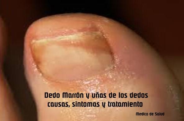 Dedo Marrón y uñas de los dedos: causas, síntomas y tratamiento