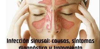 Infección sinusal: causas, síntomas, diagnóstico y tratamiento