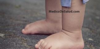 Tobillos hinchados: causas, síntomas, diagnóstico y tratamientos