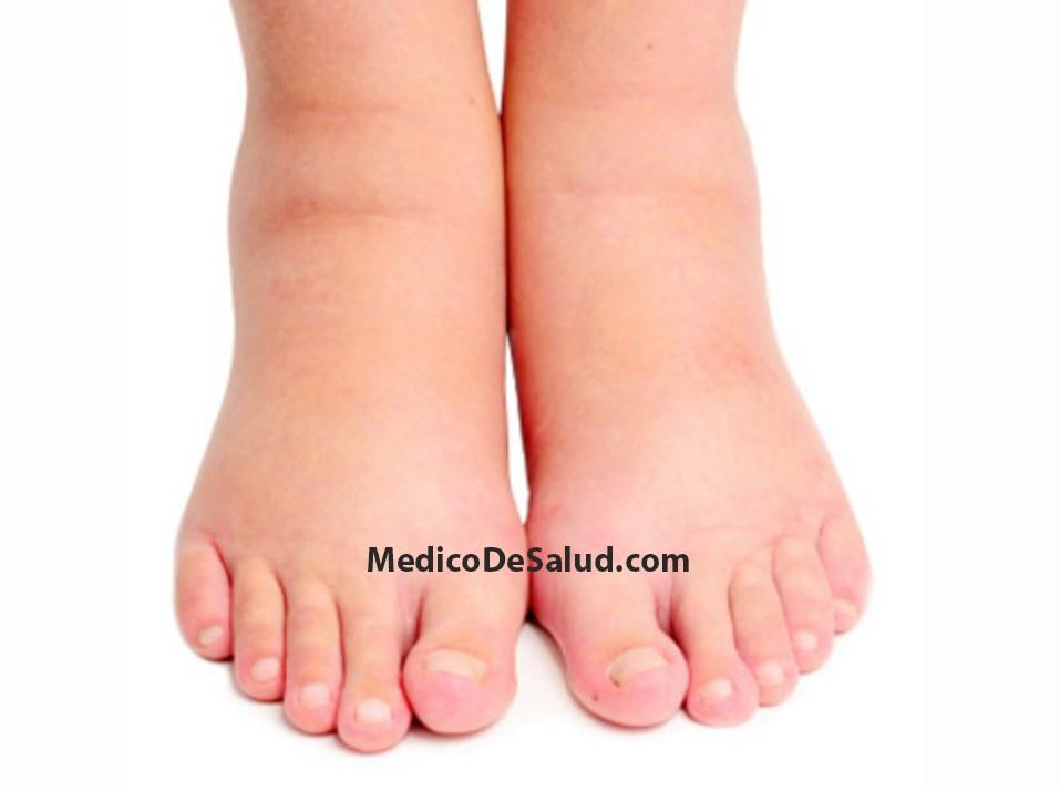tratamiento de edema de tobillos hinchados