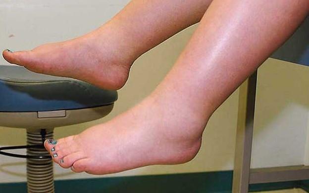 Y causas hinchados pies tobillos