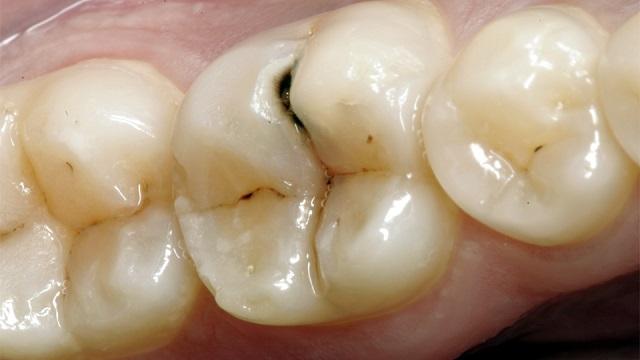 Fabrican nanopartículas capaces de combatir la caries dental