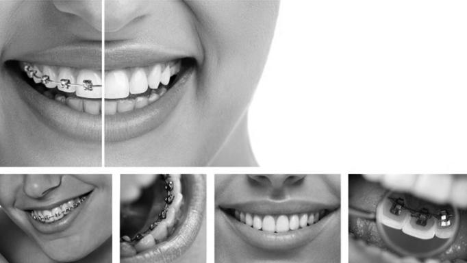 Higiene bucal en personas que llevan ortodoncia