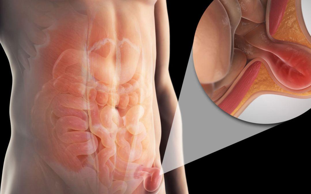 ¿Cómo detectar una hernia abdominal?