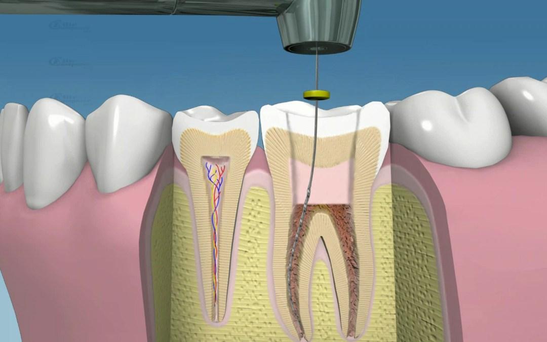 ¿Para qué sirve la endodoncia?