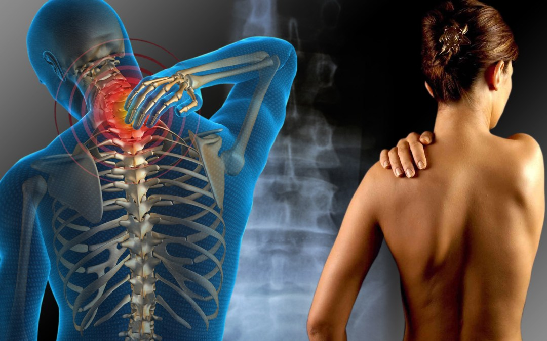 Diversos tipos de reumas