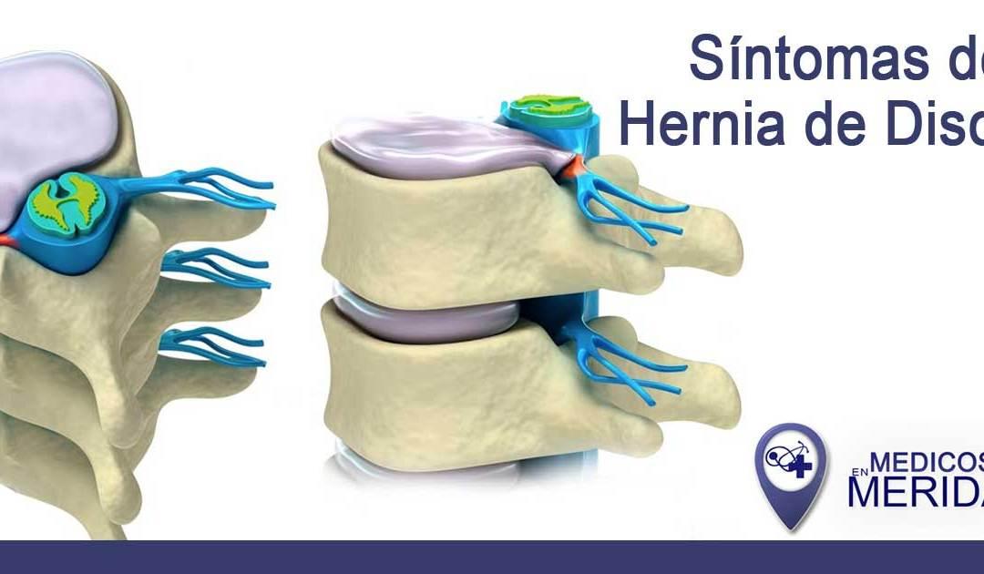 ¿Como saber si tengo una hernia de disco?